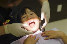 歯石除去の治療