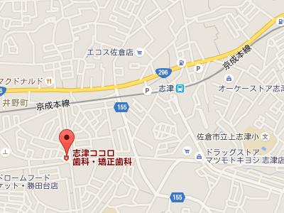 志津ココロ歯科・矯正歯科 地図