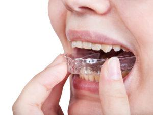 girl fixes clear aligner for orthodontic correction of bite isolated on white background