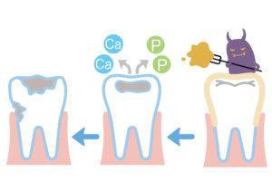 虫歯 流れ