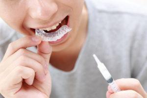 歯 ホワイトニング