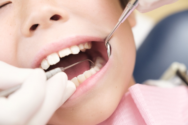 保存版!進行度別に虫歯の治療費を詳しくご紹介します!